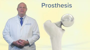 Hip Replacement & Resurfacing