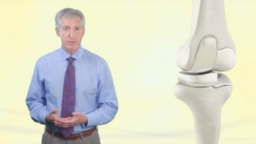Total Knee Replacement & Partial Knee Replacement