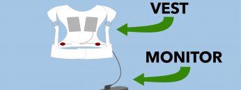 Wearable Cardioverter Defibrillator