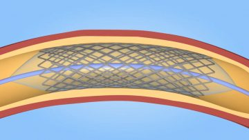What is a Stent? (MUMH)