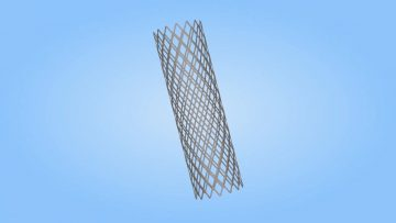 What is a Stent? (MWHC)